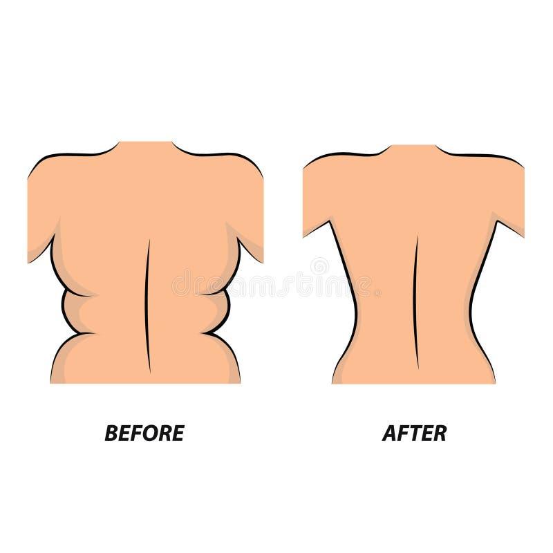 在治疗前后, 妇女肥胖身体的问题 库存例证