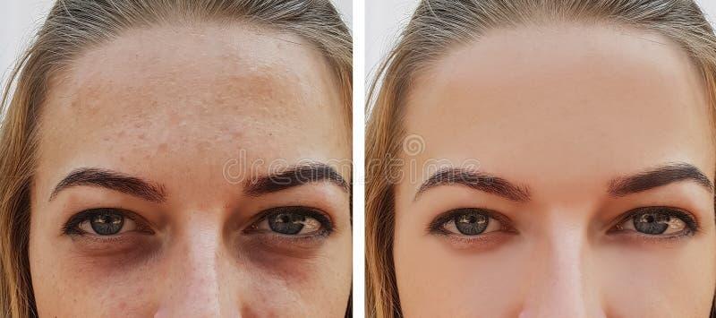 在治疗化妆用品做法前后,注视女孩袋子在眼睛下 免版税库存图片