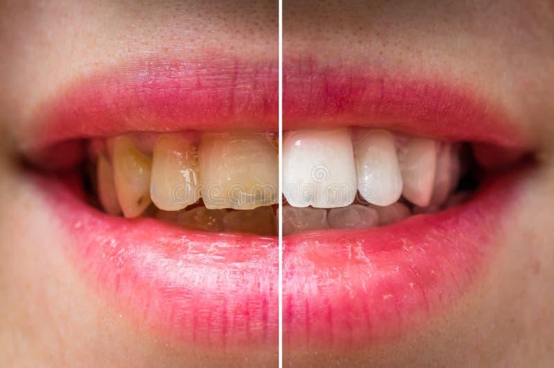 在牙齿治疗前后的妇女牙 免版税库存图片