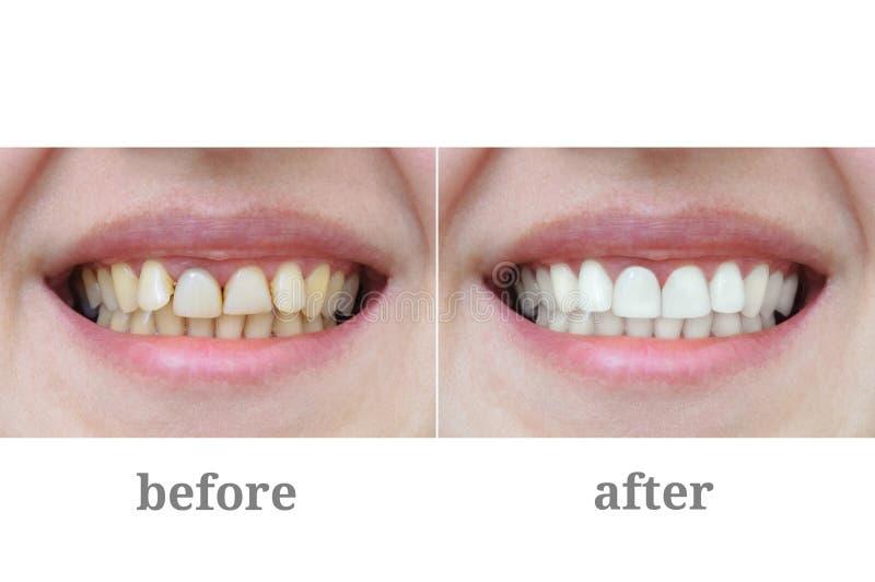 在牙齿疗法和漂白以后的牙特写镜头 图库摄影