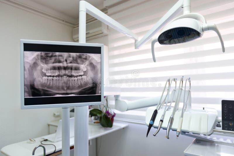在牙齿诊所的牙齿X-射线英尺长度 库存照片