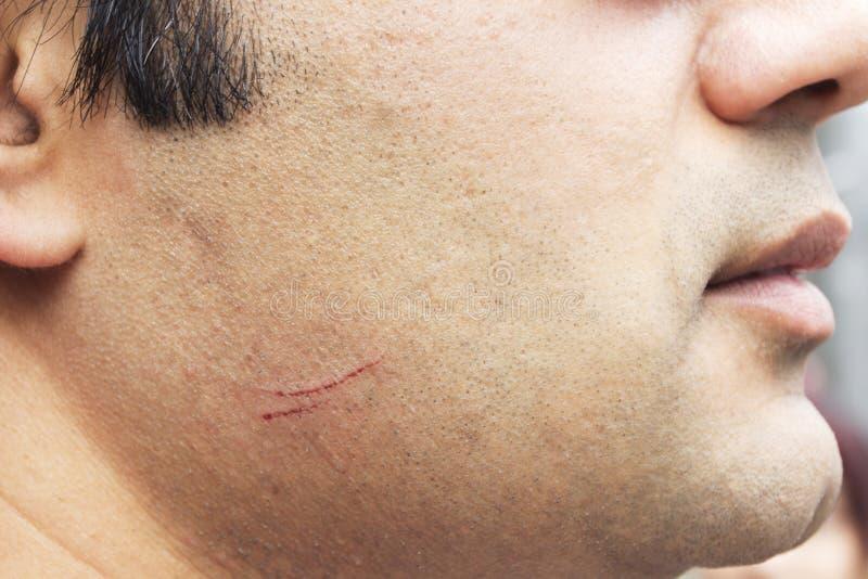 在男性面颊的裁减与血液 图库摄影