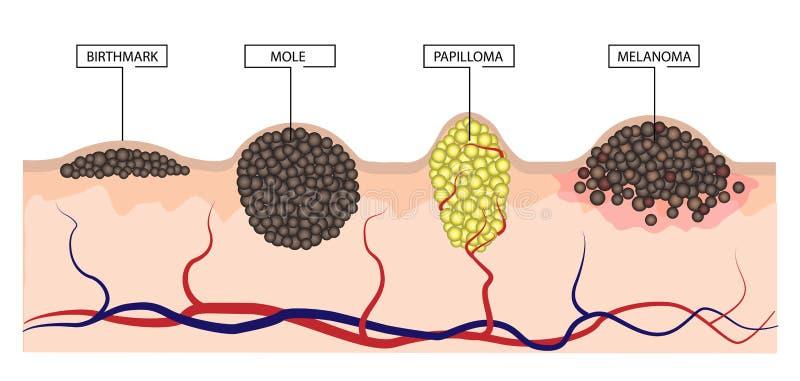 在痣、痣、刺瘤和黑瘤之间的区别 Infographics 皇族释放例证