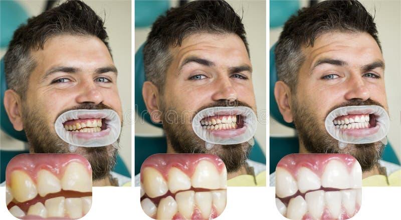 在白色牙隔绝的人:在概念前后 口腔医学概念-接近有男性的女性牙医 免版税库存图片