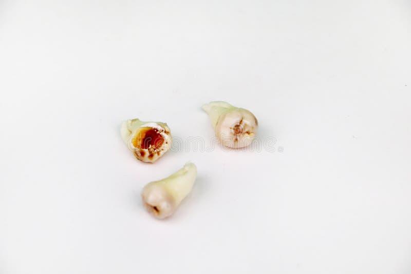 在白色的被去除的智齿 库存照片