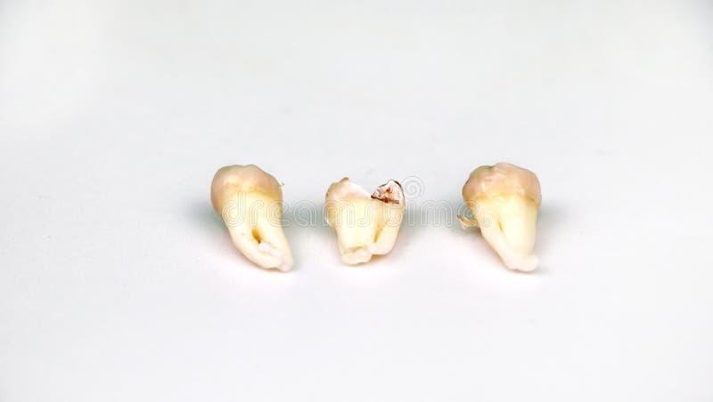 在白色的被去除的智齿 库存图片
