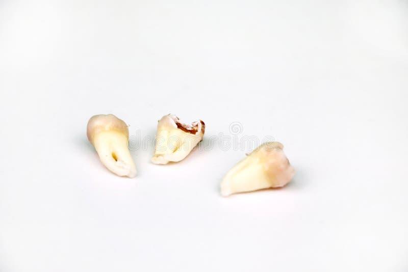 在白色的被去除的智齿 免版税图库摄影
