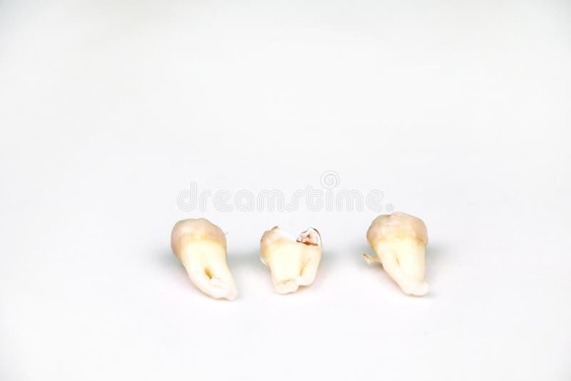 在白色的被去除的智齿 免版税库存照片