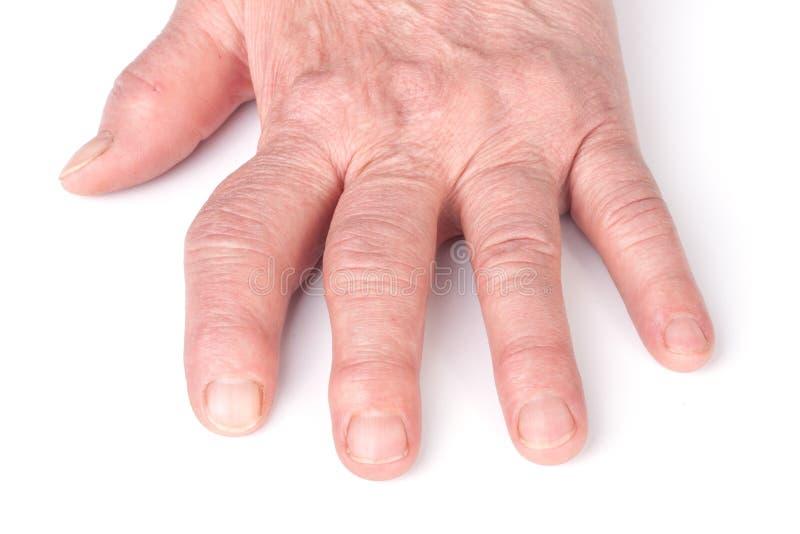 在白色背景隔绝的手类风湿病的多关节炎  库存图片
