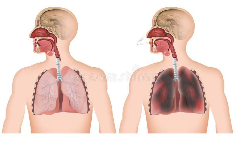 在白色背景,有cigerette的人的抽烟的肺医疗例证 皇族释放例证