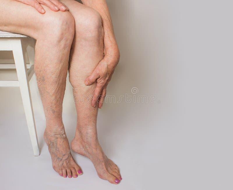 在的静脉曲张女性腿 免版税库存照片