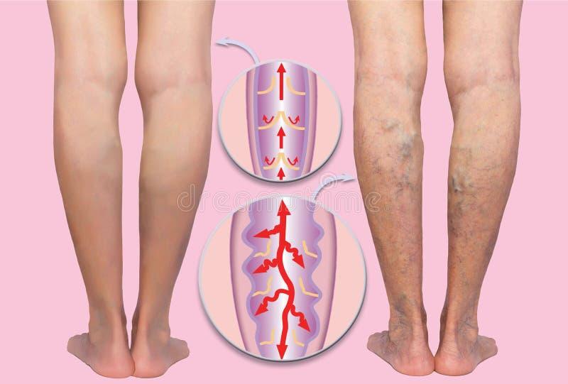 在的静脉曲张女性资深腿 正常和静脉曲张结构  免版税库存照片