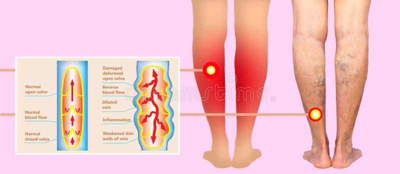 在的静脉曲张女性资深腿 正常和静脉曲张结构  图库摄影