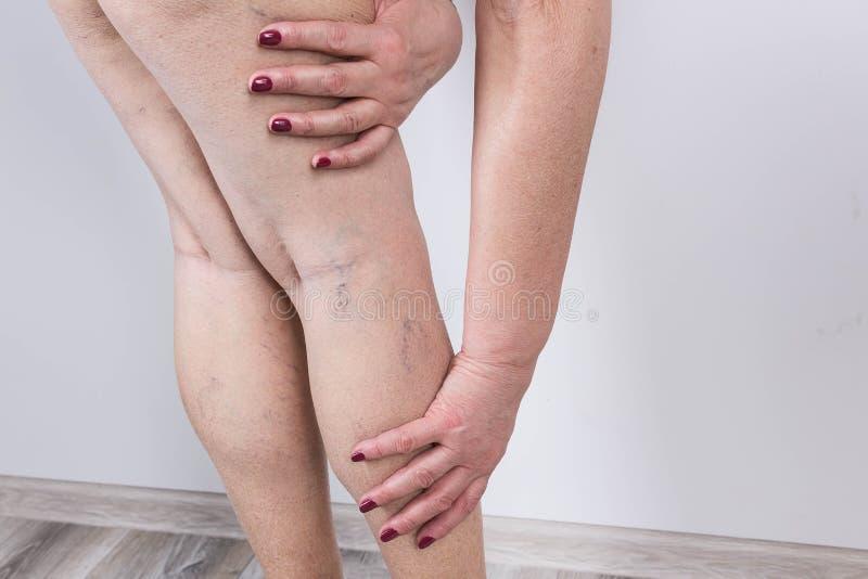 在的静脉曲张妇女的腿 图库摄影