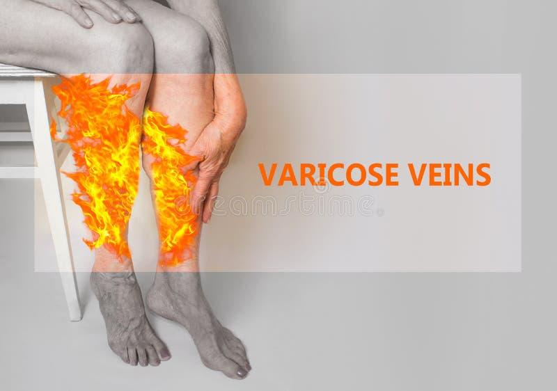 在的静脉曲张老妇人的腿柔和的淡色彩的 图库摄影