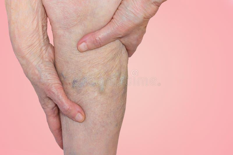 在的静脉曲张老妇人的腿蓝色的 库存照片