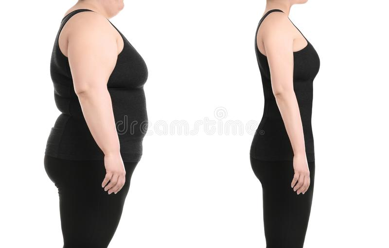 在皮下脂肪切除术操作前后的少妇 库存照片
