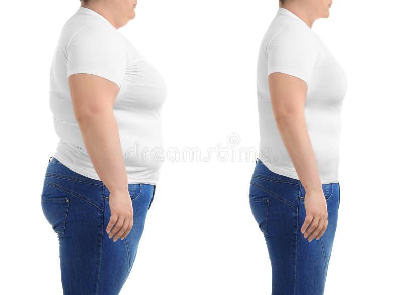 在皮下脂肪切除术操作前后的少妇 库存图片