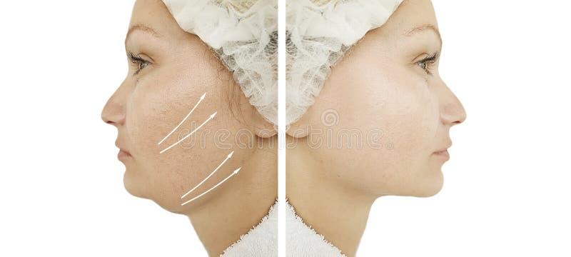在皮下脂肪切除术治疗前后的妇女双下巴 库存照片