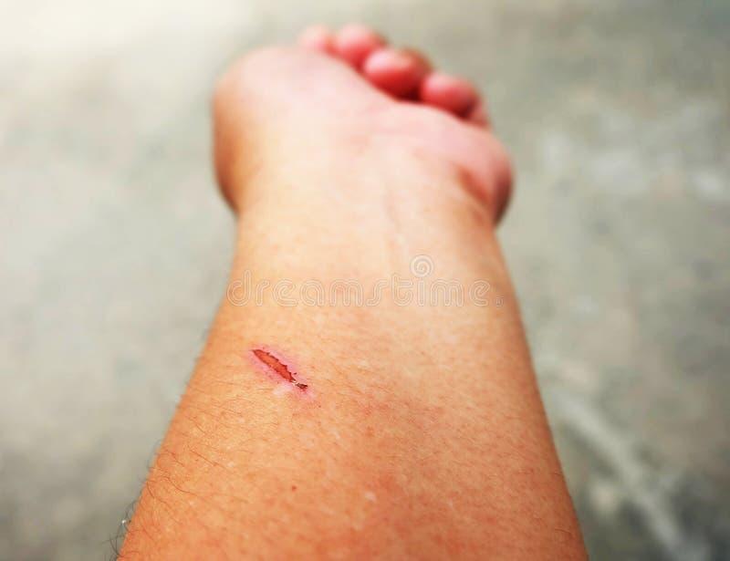 在皮肤的创伤干燥斑点病 免版税库存照片