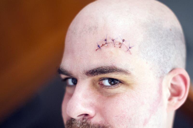 在眼眉上的一个砍得恨深的伤口 免版税库存照片