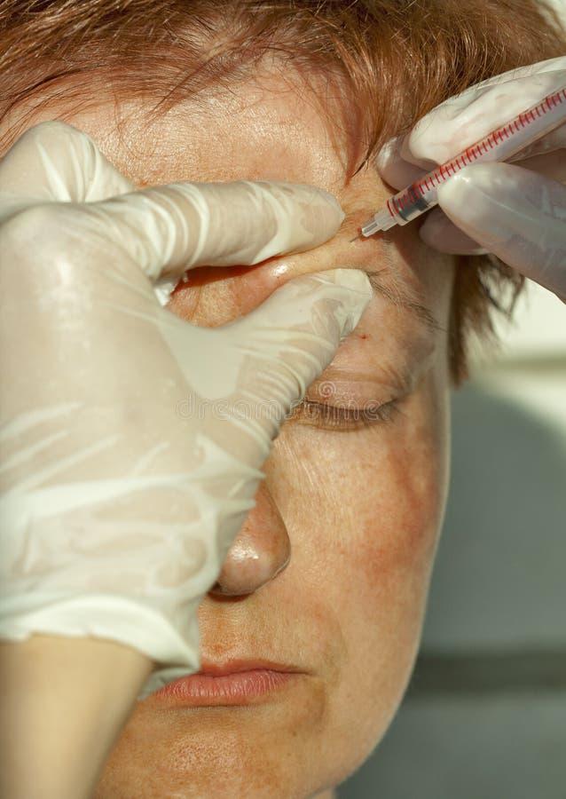在眼睛上方曲拱的Botox射入 免版税库存照片