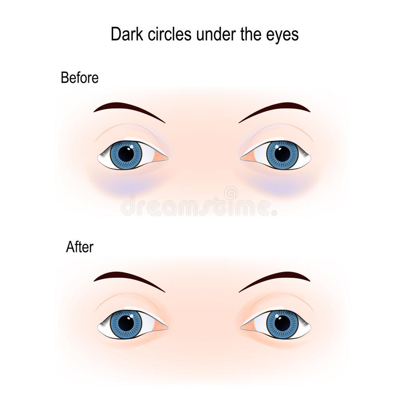 在眼睛下的黑眼圈 皇族释放例证