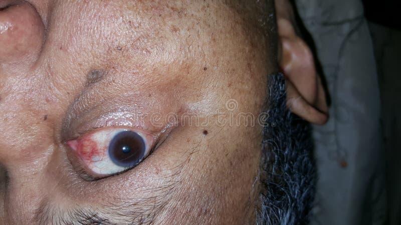 在眼睛的血液 免版税库存图片