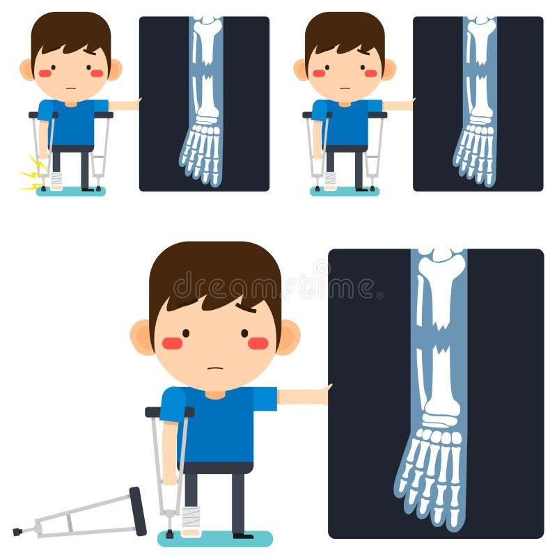 在石膏绷带或涂灰泥的腿身分伤的腿X-射线微小的逗人喜爱的动画片耐心人字符右腿与辅助 向量例证