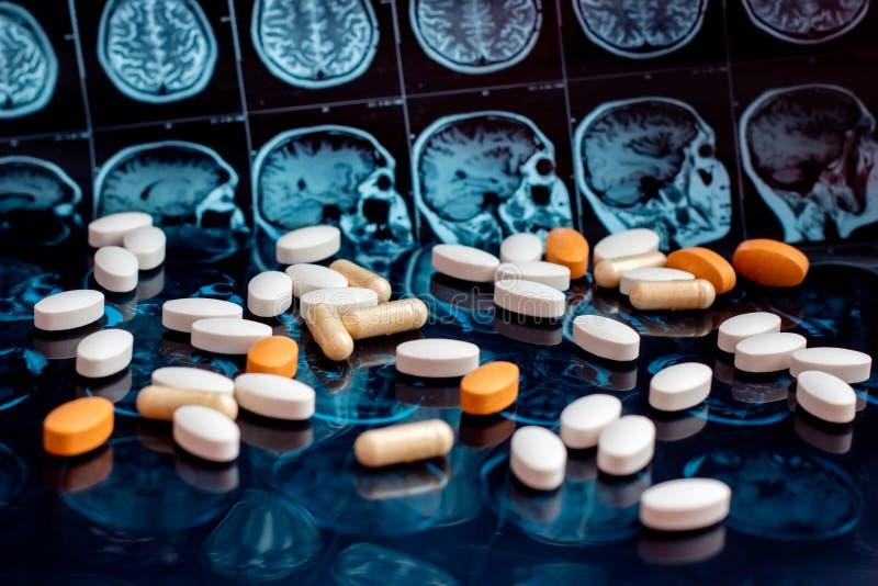 在磁性脑子共鸣扫描mri背景的不同的配药医学药片 药房题材,医疗保健 库存图片