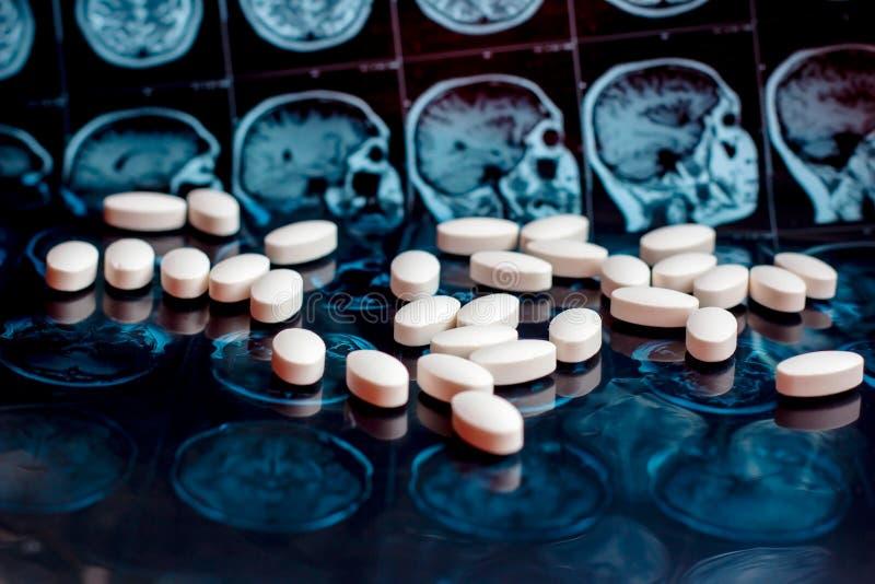 在磁性脑子共鸣扫描mri背景的白色配药医学药片 药房题材,医疗保健 库存照片