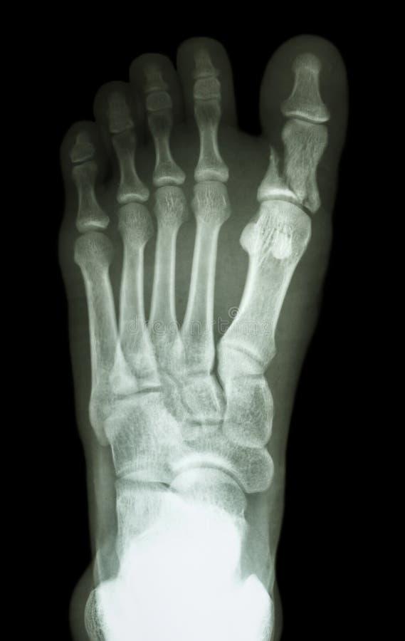 在第一个脚趾的破裂接近趾骨 免版税图库摄影
