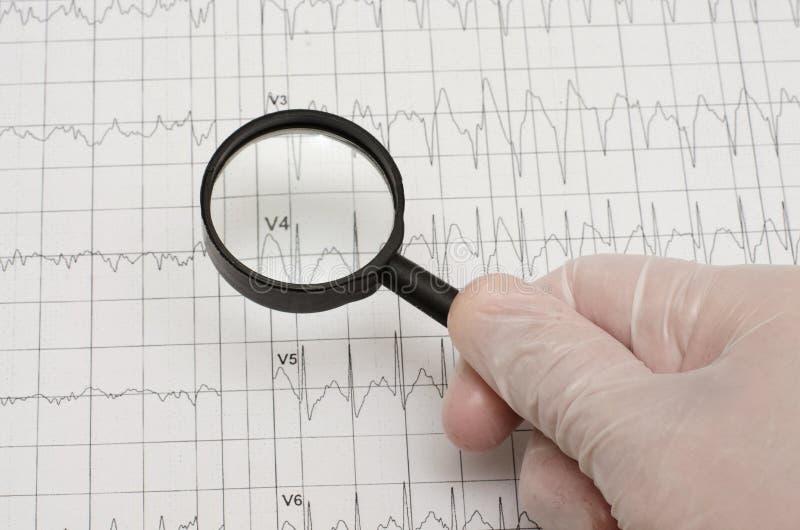 在纸的心电图 在拿着magn的医疗手套的手 免版税库存照片
