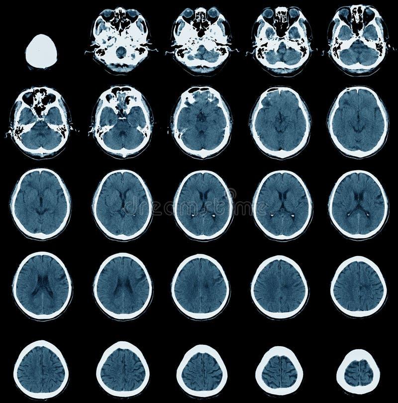 在老人的CT扫描 向量例证