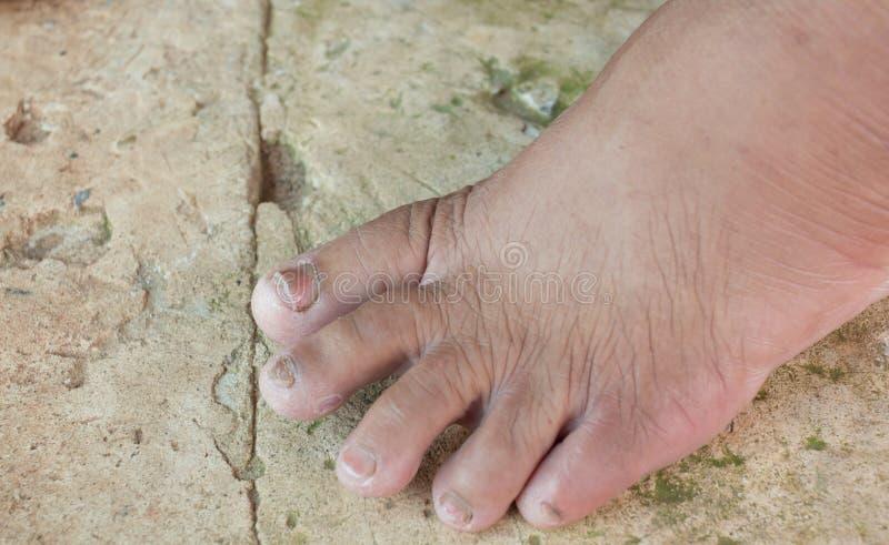 在老妇人的脚趾的真菌 图库摄影