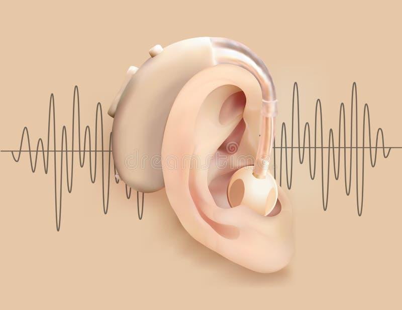 在耳朵后的助听器 耳朵和声放大器在声波样式背景  聋和听力丧失 皇族释放例证
