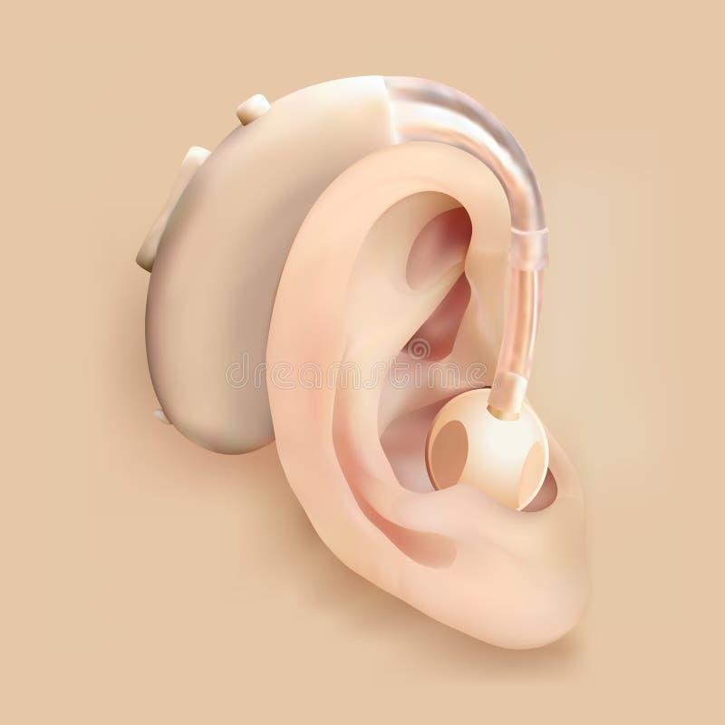 在耳朵后的助听器 耳朵和声放大器 聋和听力丧失 治疗和弭补科 向量例证