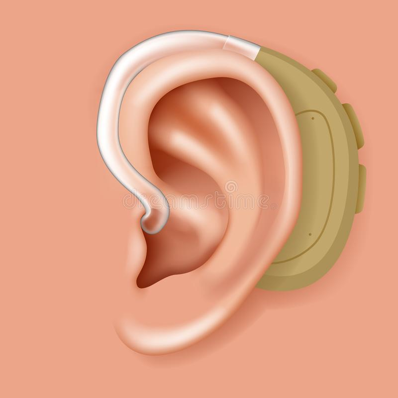在耳朵器官助听器人的医疗保健特写镜头现实3d象设计传染媒介例证后的Aerophone 库存例证