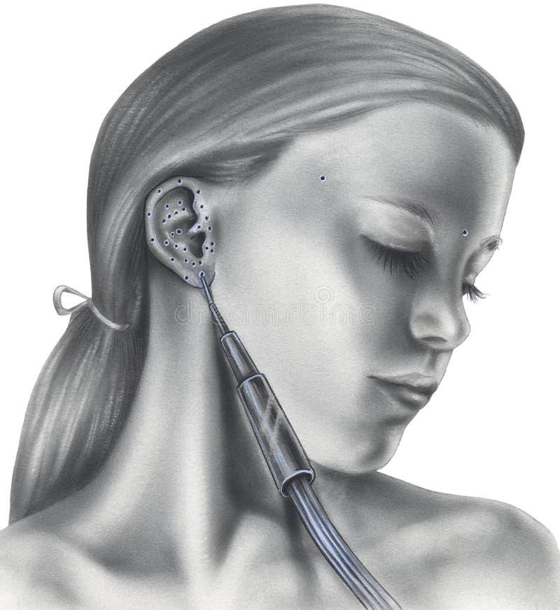 在耳朵的针灸点 库存图片