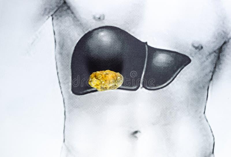 在肝脏的石头,概要图象,大胆结石,胆结石的结果 免版税库存照片