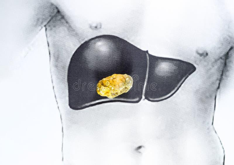 在肝脏的石头,概要图象,大胆结石,胆结石的结果 库存图片