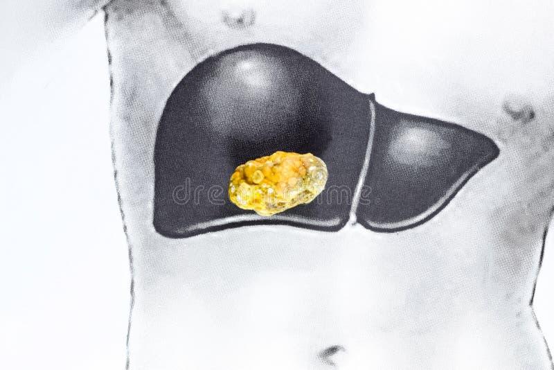 在肝脏的石头,概要图象,大胆结石,胆结石的结果 免版税图库摄影