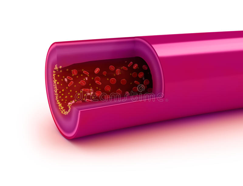 在胆固醇匾造成的动脉的动脉粥样硬化 库存例证