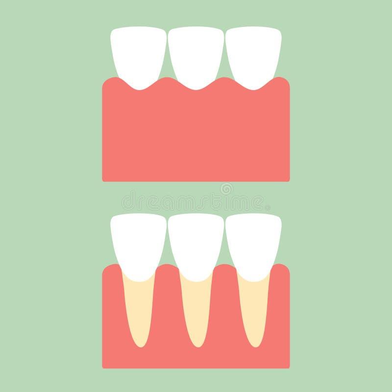 在胶的健康门牙牙牙齿保护的 库存例证