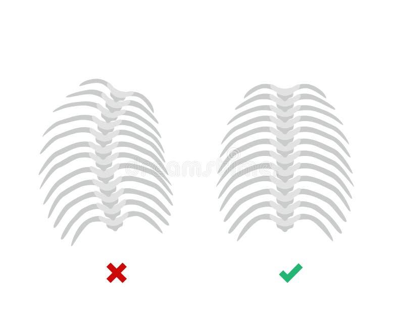 在胸部脊椎的胸部脊柱侧凸和平直的中坚概念导航在平的设计的例证被隔绝的  向量例证
