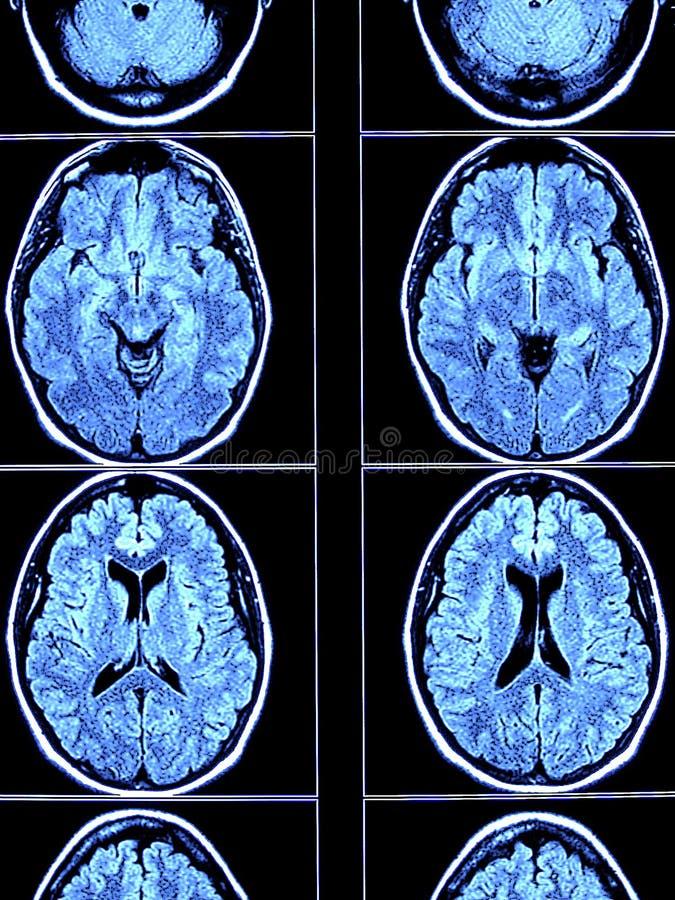 在脑子扫描之上 免版税库存照片