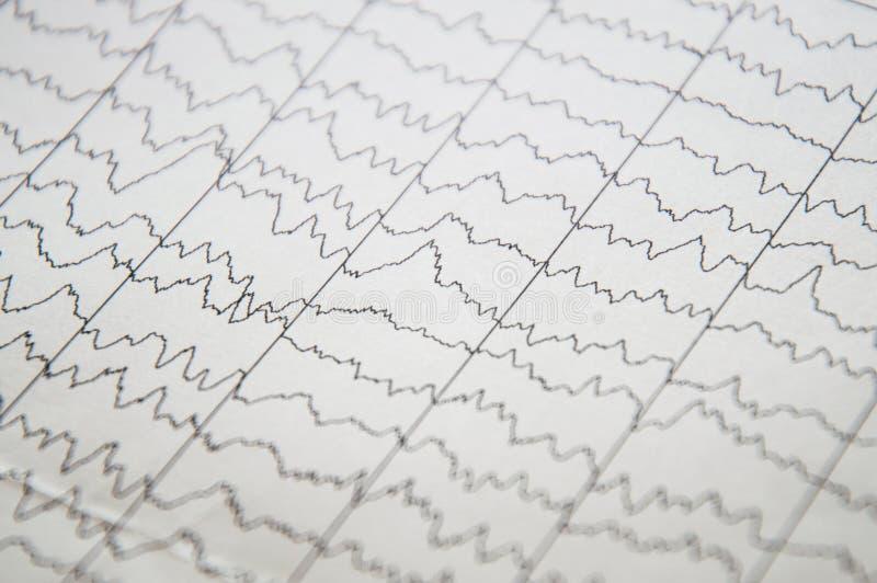 在脑电图,EEG图,儿童的脑子EEG的脑波  免版税库存照片