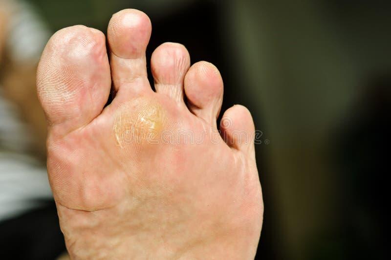 在脚下的疣由柳酸能治疗 库存图片