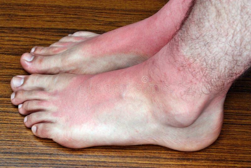 在脚的晒斑 库存照片