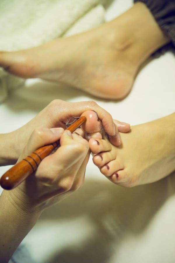 在脚的针压法 免版税库存图片